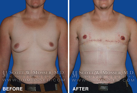 Transgendered top surgery
